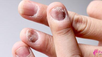 Photo of Tırnak Mantarı Nedir? Cerrahi Ve Bitkisel Tedavi Yöntemleri