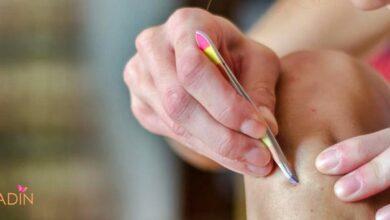 Photo of Bacaklardaki Batık Nasıl Geçer? 6 Farklı Doğal Yöntemler