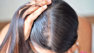 Photo of Kadınlarda Saç Dökülmesi Hakkında Tüm Merak Ettikleriniz