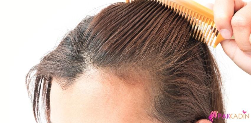Kadınlarda Saç Dökülmesi Tipleri
